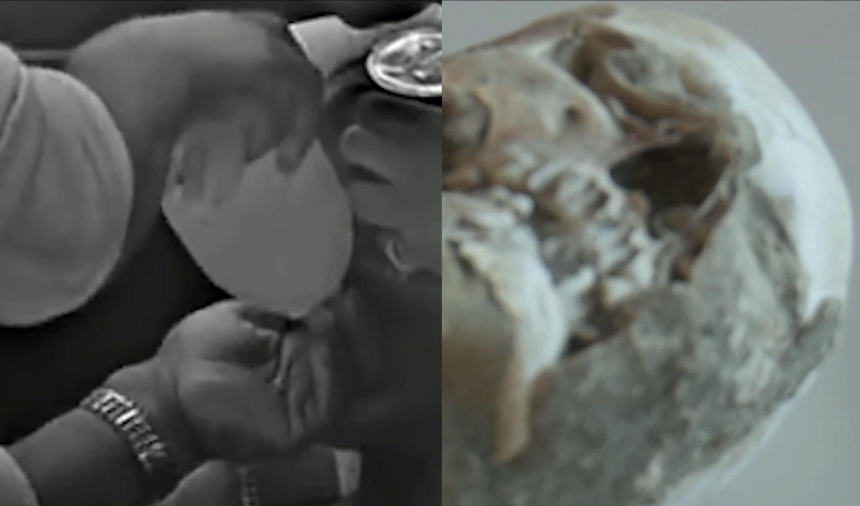 Zwei verpixelte Bilder in Grautönen, links Hände, rechts ein Schädel.