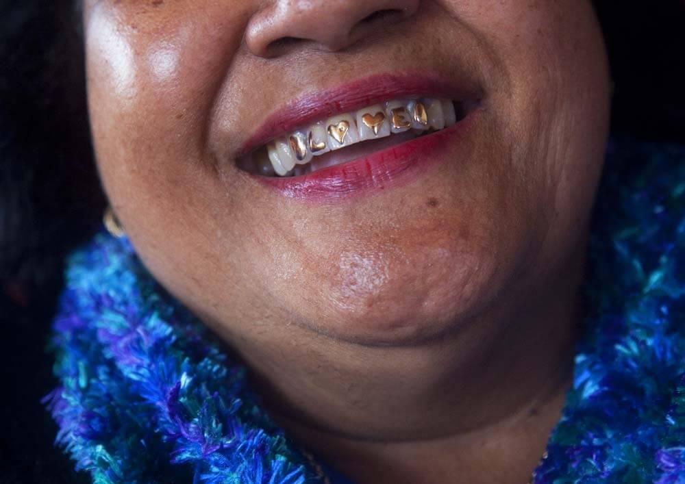 """Fotografie von der Tante von Ane Tonga, die goldenen Zahnschmuck auf ihrer oberen Zahnleiste hat, zu sehen ist in Gold das Wort """"LOVE"""""""